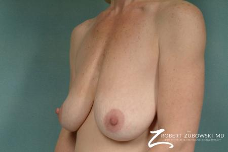 Breast Lift And Augmentation: Patient 1 - Before and After Image 2