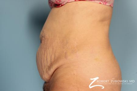 Tummy Tuck: Patient 16 - Before and After Image 2