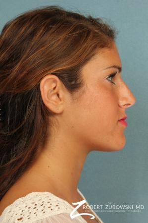 Rhinoplasty: Patient 19 - Before and After Image 2