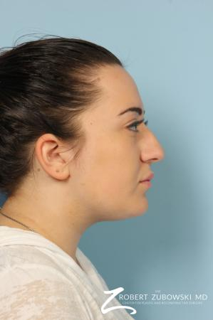 Rhinoplasty: Patient 21 - Before and After Image 3