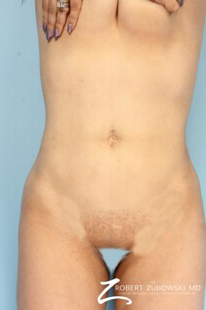 Liposuction: Patient 48 - After Image 1