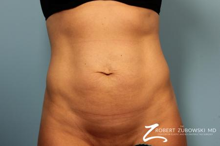 Tummy Tuck: Patient 14 - Before Image
