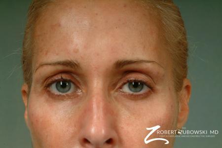 Latisse: Patient 3 - After Image 2