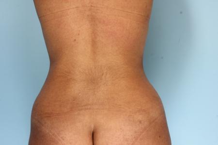 Liposuction: Patient 1 - After Image 2
