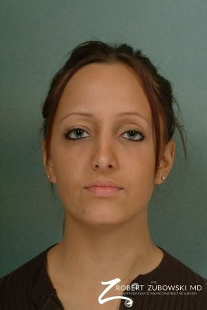 Rhinoplasty: Patient 9 - After Image 1