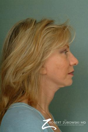 Facelift: Patient 13 - After Image 2
