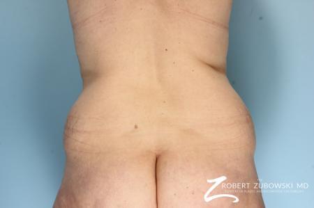 Liposuction: Patient 47 - Before Image