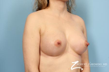 Breast Augmentation: Patient 6 - After Image 2