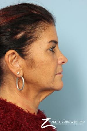 Neck Lift: Patient 10 - Before Image 2