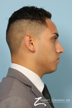 Rhinoplasty: Patient 3 - Before and After Image 2