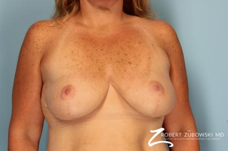 Breast Lift And Augmentation: Patient 10 - After Image