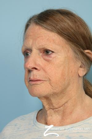 Blepharoplasty: Patient 38 - Before and After Image 2