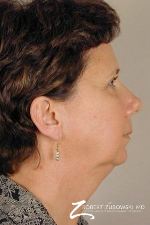 Facelift: Patient 8 - Before and After Image 2