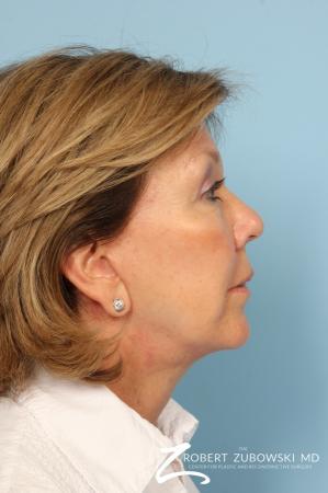 Facelift: Patient 18 - After Image 2