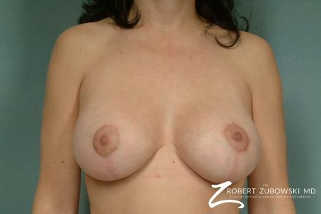 Breast Lift And Augmentation: Patient 2 - After Image