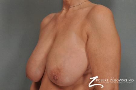 Breast Reduction: Patient 13 - Before and After Image 2