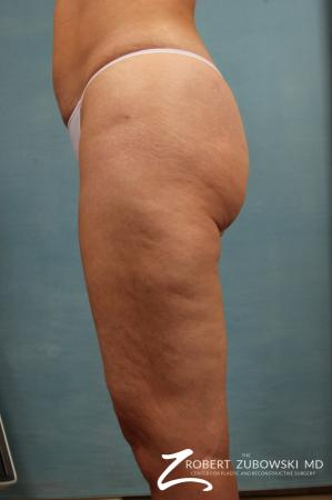 Cellulaze: Patient 2 - Before and After Image 2