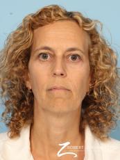 Blepharoplasty: Patient 29 - After Image