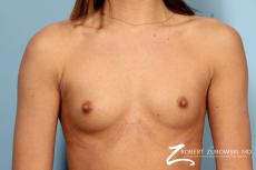 Breast Augmentation: Patient 37 - Before Image