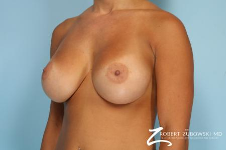 Breast Augmentation: Patient 41 - After Image 3