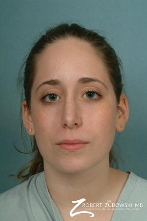 Rhinoplasty: Patient 7 - After Image 1