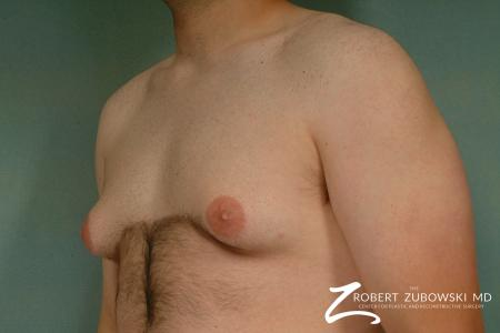 Gynecomastia: Patient 1 - Before and After Image 2