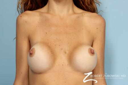 Breast Revision: Patient 1 - Before Image 1