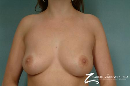 Breast Augmentation: Patient 20 - Before Image 1