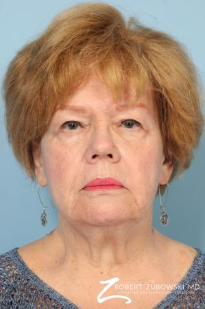 Facelift: Patient 26 - Before Image
