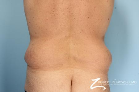 Body Lift: Patient 8 - Before Image 2
