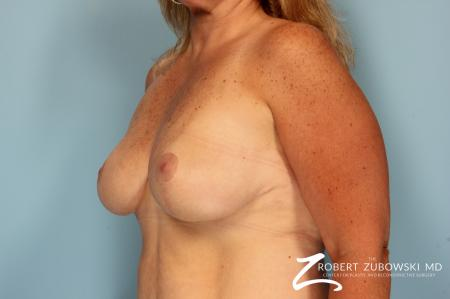 Breast Lift And Augmentation: Patient 10 - After Image 2