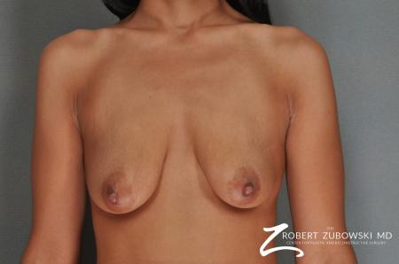 Breast Lift And Augmentation: Patient 7 - Before Image