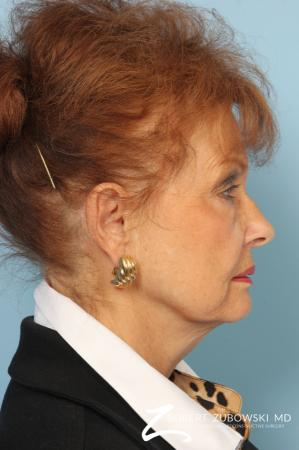 Facelift: Patient 24 - Before and After Image 2