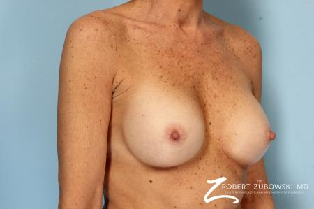 Breast Augmentation: Patient 39 - After Image 2