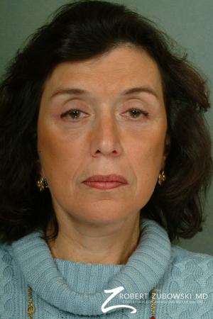 Brow Lift: Patient 6 - After Image 1