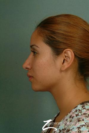 Rhinoplasty: Patient 13 - After Image 2