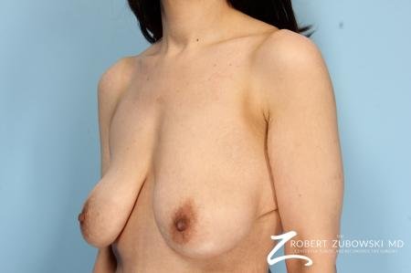 Breast Lift And Augmentation: Patient 6 - Before Image 2