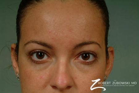 Latisse: Patient 1 - After Image 2