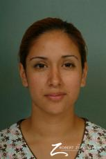 Rhinoplasty: Patient 13 - After Image