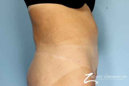 CoolSculpting®: Patient 2 - Before Image 2