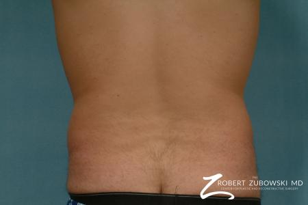 Liposuction: Patient 30 - Before and After Image 2