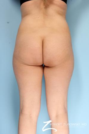 Butt Augmentation: Patient 2 - Before and After Image 2