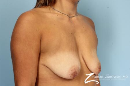 Breast Lift And Augmentation: Patient 18 - Before Image 2