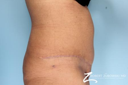 Tummy Tuck: Patient 19 - After Image 2