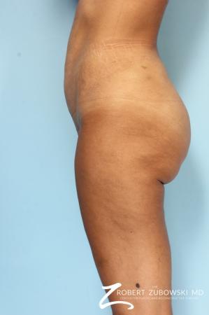 Liposuction: Patient 49 - After Image 3