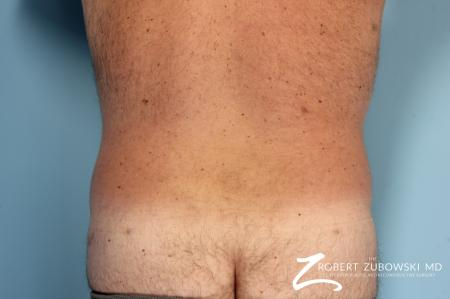 Liposuction: Patient 10 - After Image