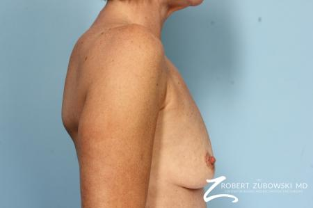 Breast Augmentation: Patient 38 - Before Image 2