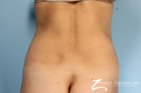 CoolSculpting®: Patient 5 - Before and After Image 2