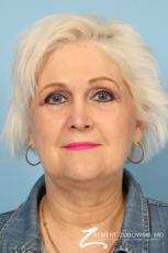 Blepharoplasty: Patient 26 - After Image