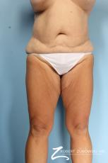 Thigh Lift: Patient 4 - Before Image